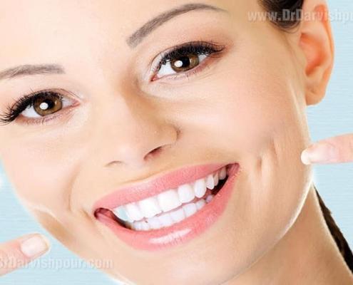 طراحی لبخند زیبا و خوشایند