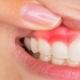 کیست دندان چیست؟
