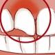 شکستگی و لب پریدگی دندان