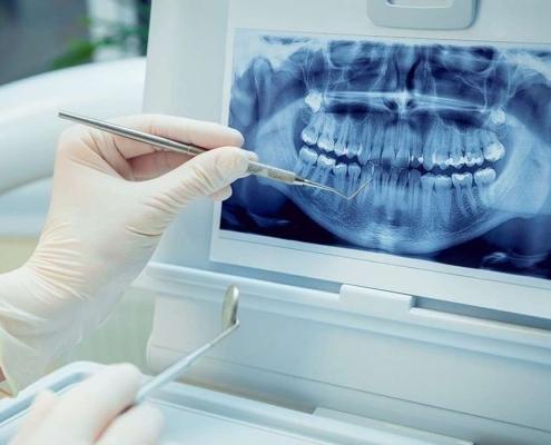 رادیوگرافی پری اپیکال دندان