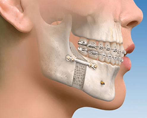 90 درصد تخفیف در هزینه جراحی دندان و فک